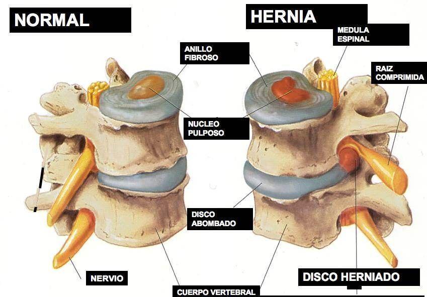 La hernia intervertebral sheynogo del departamento 6-7 columnas vertebrales